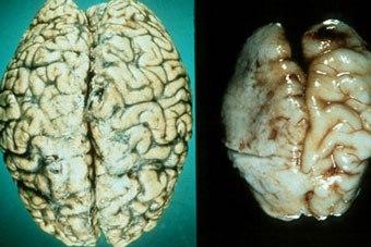 мозг культурно пьющего человека